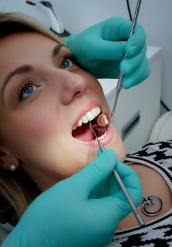 korona-virus-sigurnost-zubar-stomatološka-poliklinika-breyer,zubar-smile-makeover-estetska-stomatologija-ljuskice.zubi-cirkon-krunice-poliklinika-breyer