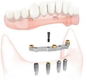 proteza_ na_4 _implantata_poliklinika_breyer