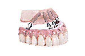 all-on-4-implantati-dentalna-poliklinika-breyer