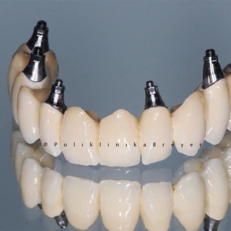 1b - All-on-6 s Nobel Biocare implantatima i cirkonskim mostom