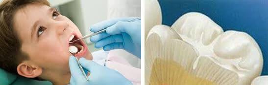 pečačenje-fizura-na-griznim-površinama-zuba-dentalna-poliklinika-breyer