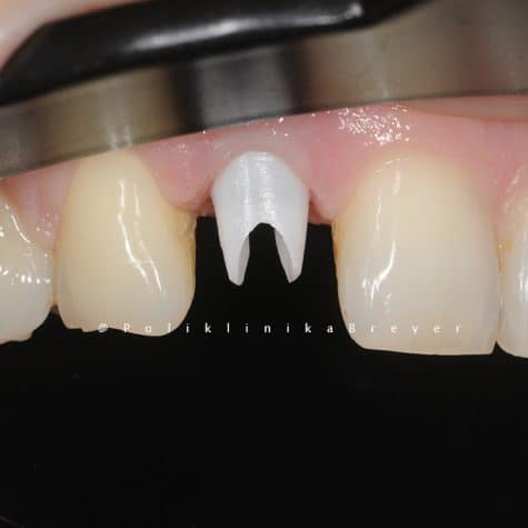1a - Cirkon nadogradnja na Nobel implantatu