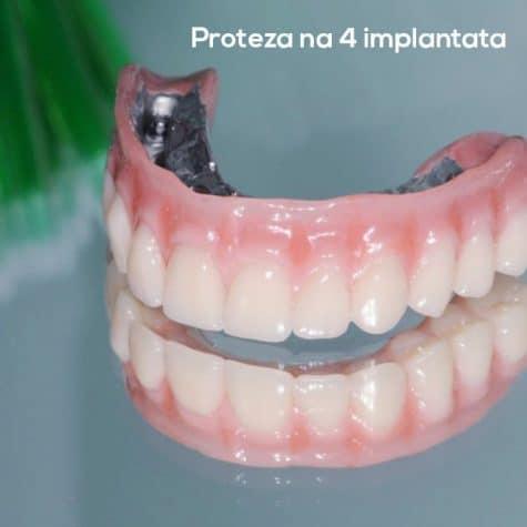 all-on-4-original-stomatološka-poliklinika-breyer-sisak-fiksni-most-al-on-4-sve-na-4-komplet-vilica-najbolji-implantati-nobel-biocare-garancija-kvaliteta.jpg