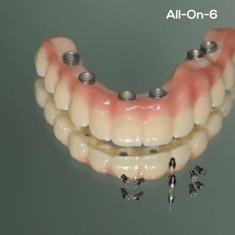all-on-6-implantati-ekskluzivna-varijanta-poliklinika-breyer-krankenkasse-povrat-sve-na-6